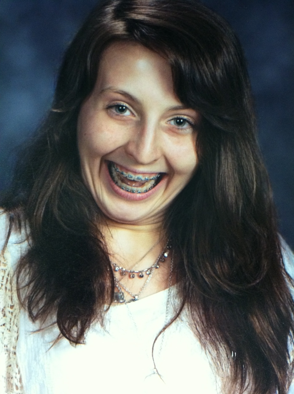 funny braces picture, funny school picture