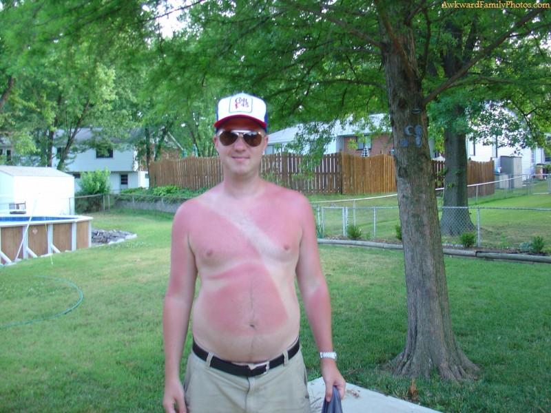 funny sunburn picture